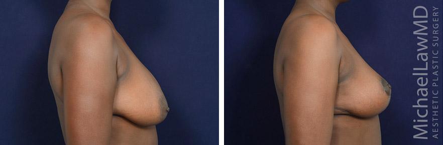 breastlift-54s