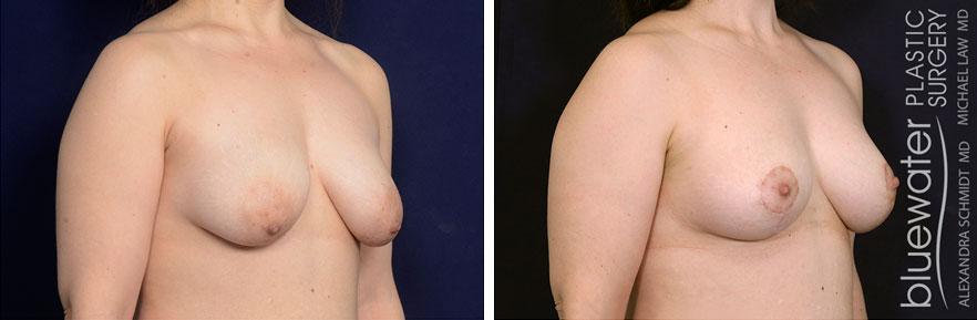 breastlift1b_5_10_21
