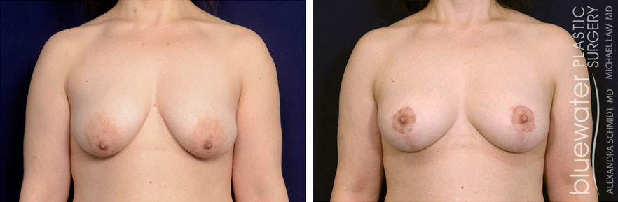 breastlift1c_5_10_21