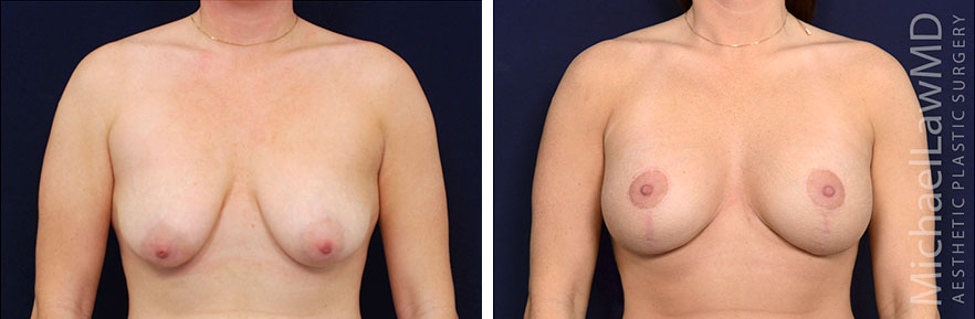 breastlift24-F-rev