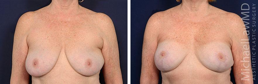 breastlift62-F