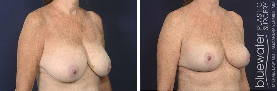 breastred1b_3_17_21