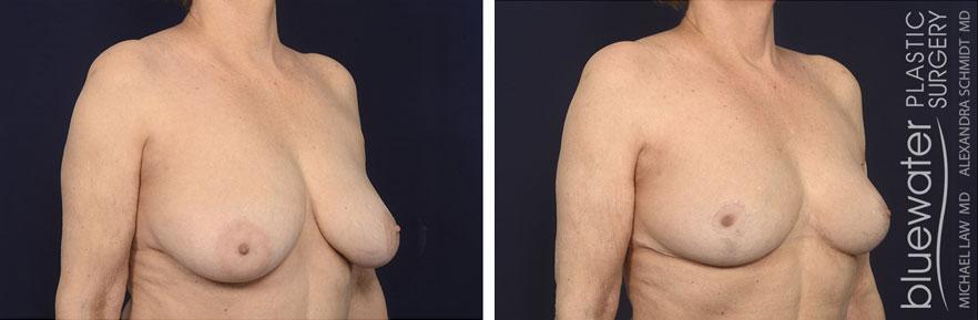 breastred2b_3_17_21