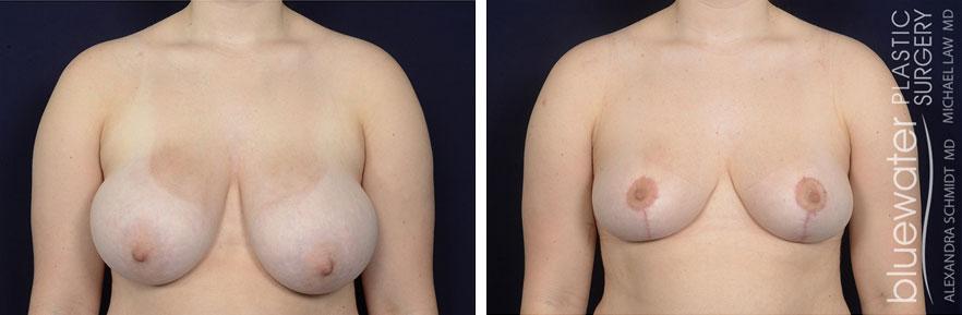 breastred2c_1_15_21