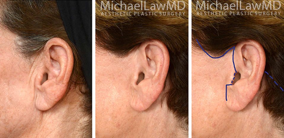 facelift-scars-25a