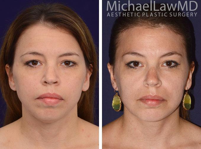 facial-implant-1f