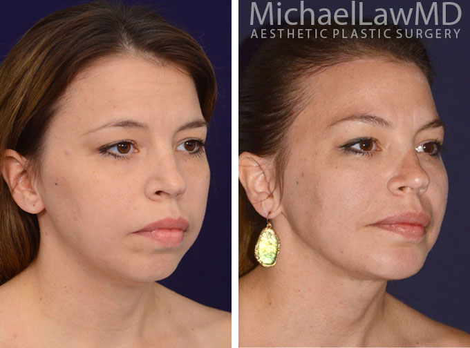 facial-implant-1o
