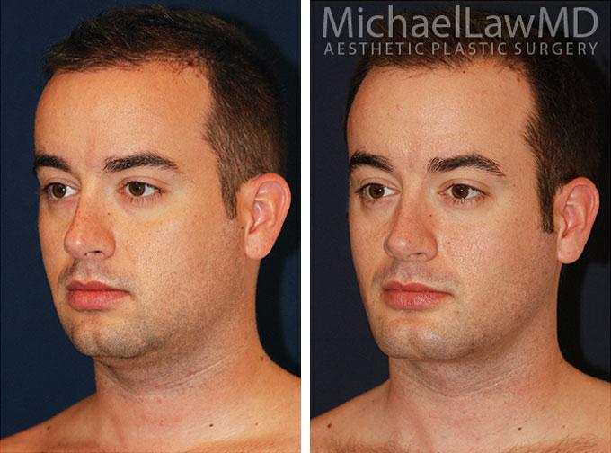 facial-implant-2o