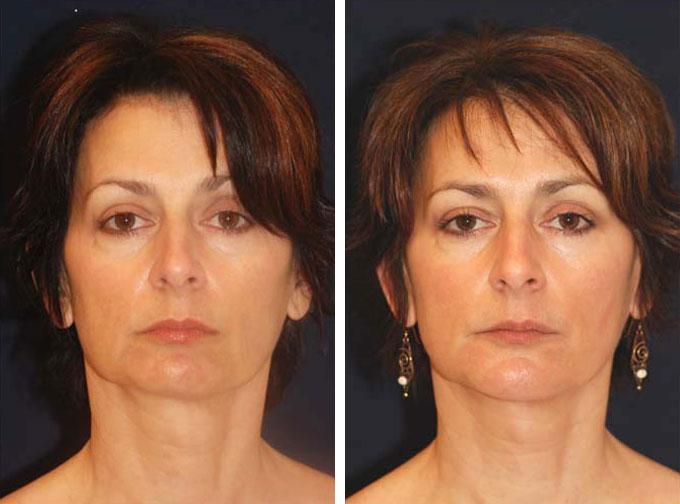 facial-implant-3f