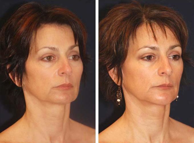 facial-implant-3o