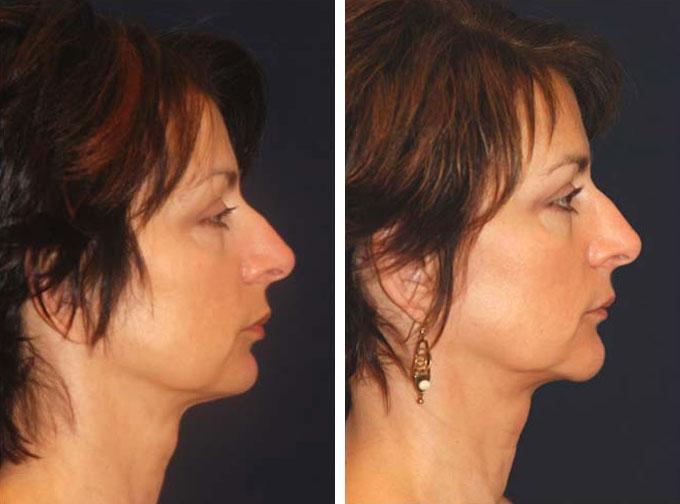facial-implant-3s