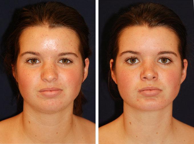 facial-implant-4f