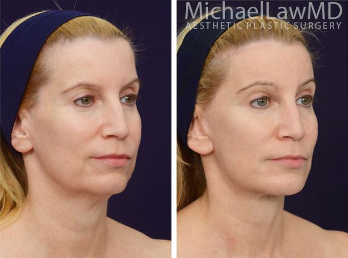 facial-implant-5o