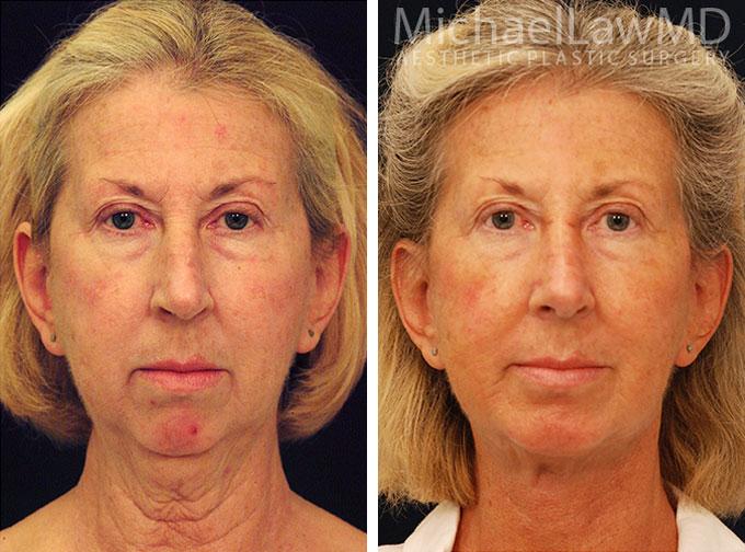 facial-implant-6f