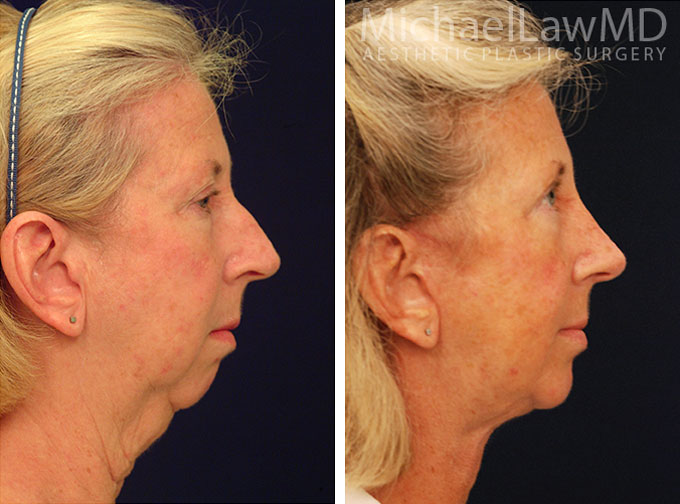 facial-implant-6s