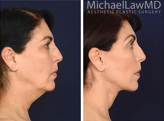 facialrejuv36-fatgraft79-s-REV2