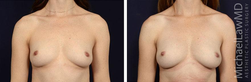 breastgraft2a_2_25_21