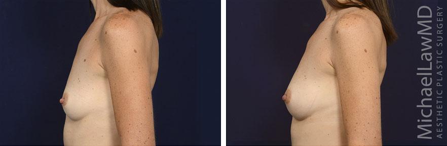 breastgraft4c_2_25_21