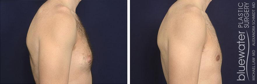 gyneco27a