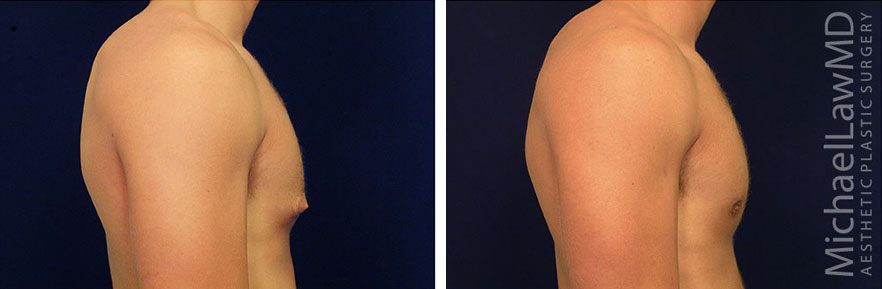 gynecomastia-04s