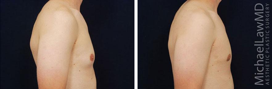 gynecomastia-06s