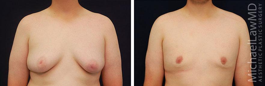 gynecomastia-10f