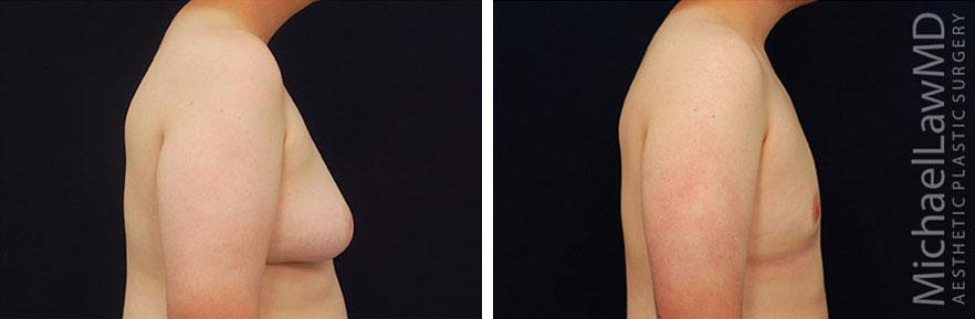 gynecomastia-10s