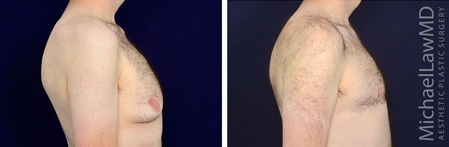 gynecomastia-13r2-s
