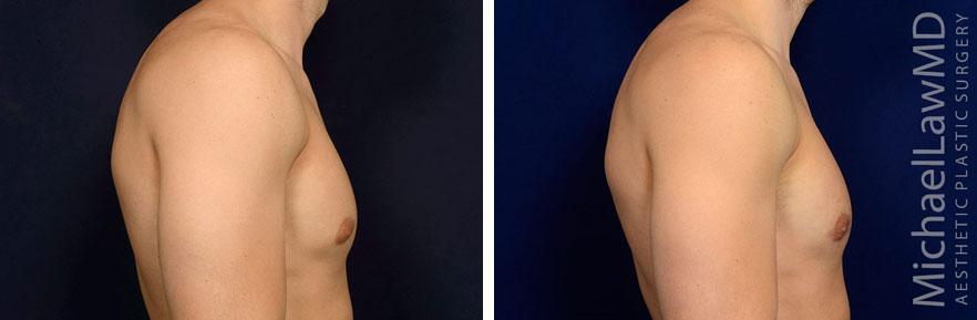 gynecomastia-19s