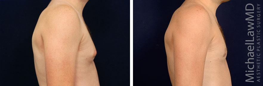 gynecomastia-23s