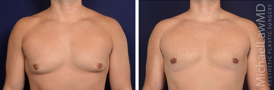 gynecomastia-25-f