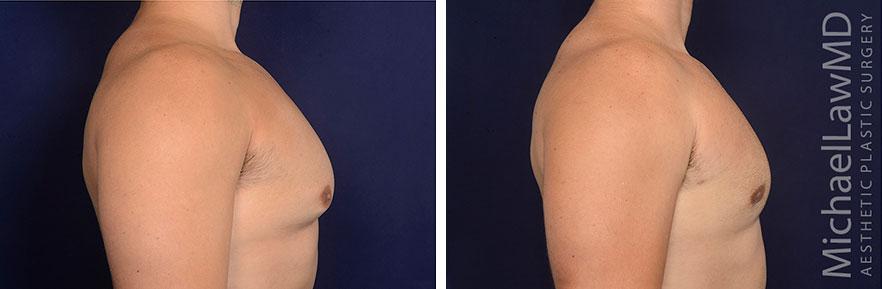gynecomastia-25-s