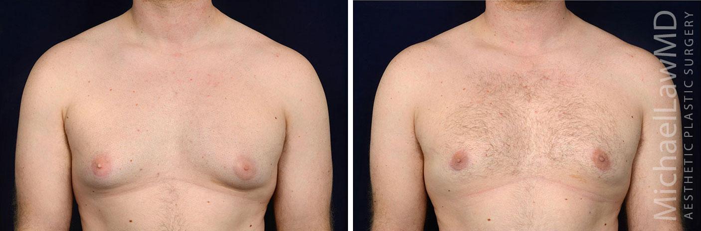gynecomastia-25f