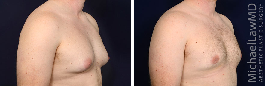 gynecomastia-25o-r2