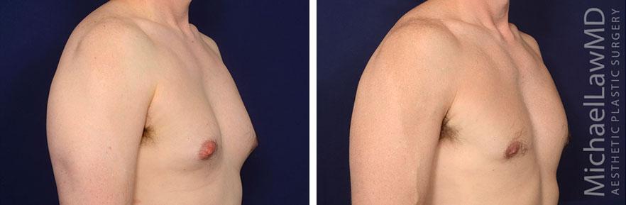 gynecomastia-28o