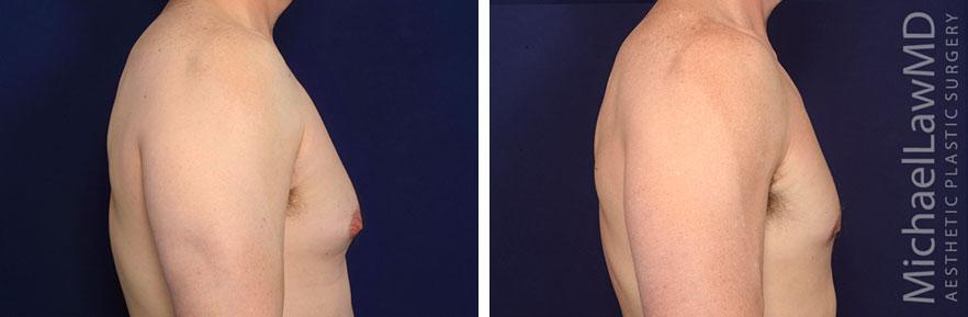 gynecomastia-28s