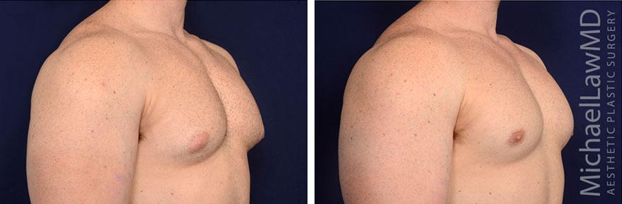 gynecomastia-30o