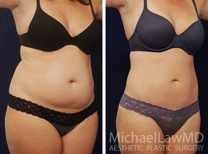 liposuction-12o