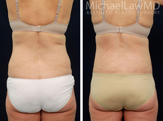 liposuction-13o