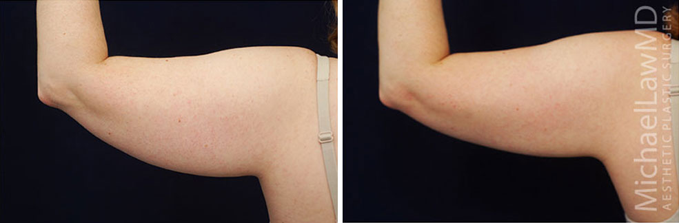 liposuction-20f