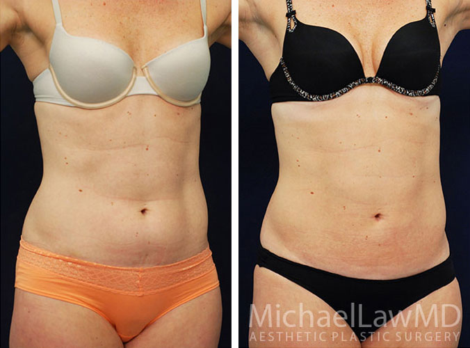 liposuction-21o