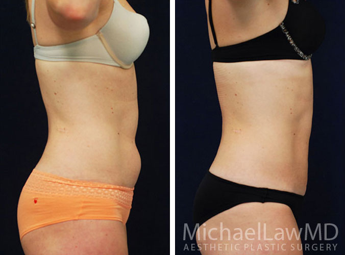 liposuction-21s