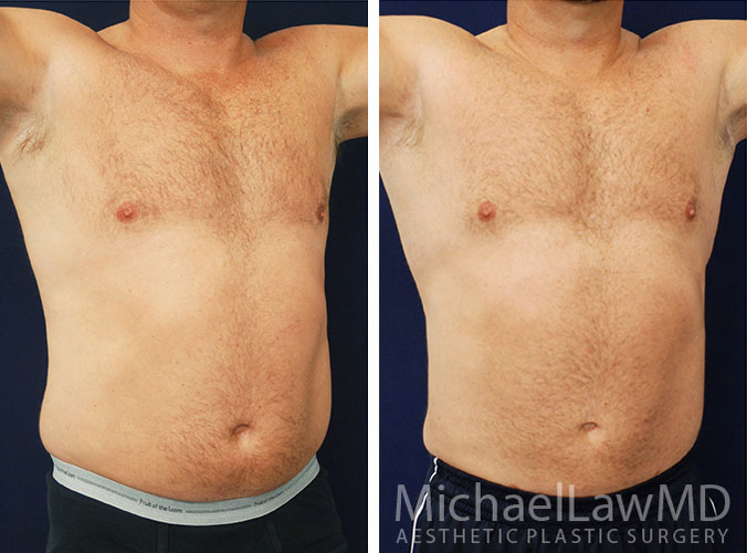 liposuction-22o