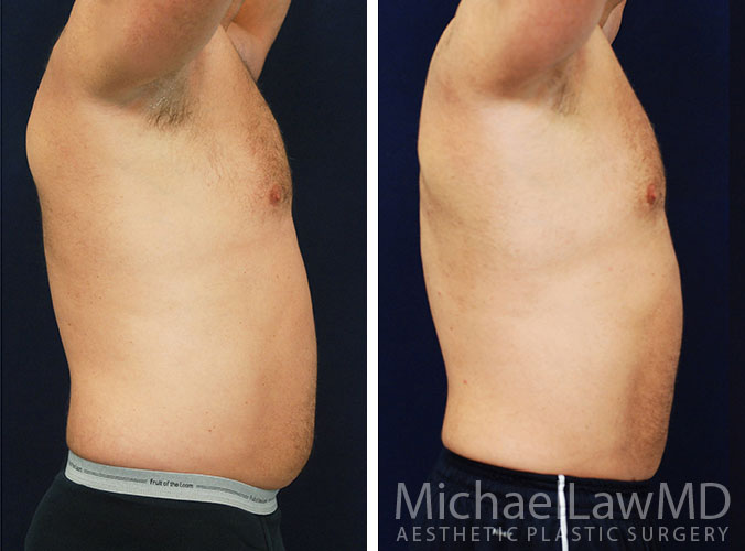 liposuction-22s