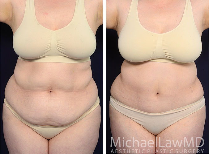 liposuction-23-f