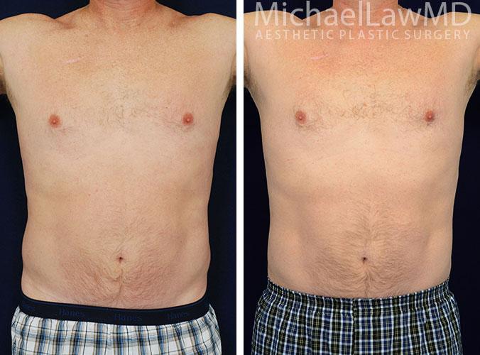 mens-body-contouring-2a