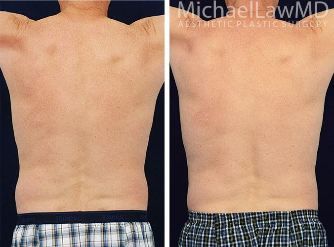 mens-body-contouring-2d