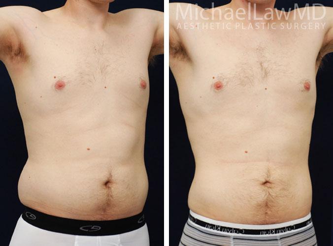 mens-body-contouring-4c