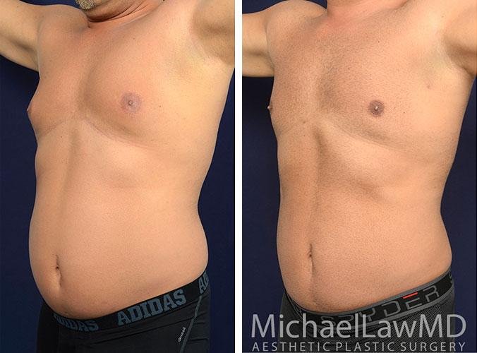 mens-body-contouring-5a