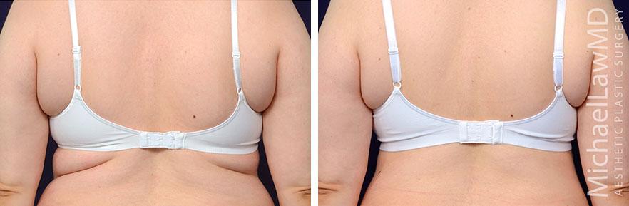 posterior-thoracoplasty-1b